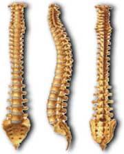 Las revocaciones sobre el tratamiento de la hernia de la columna vertebral