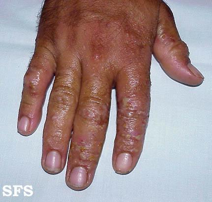 Rimedi di gente a eczema di mani