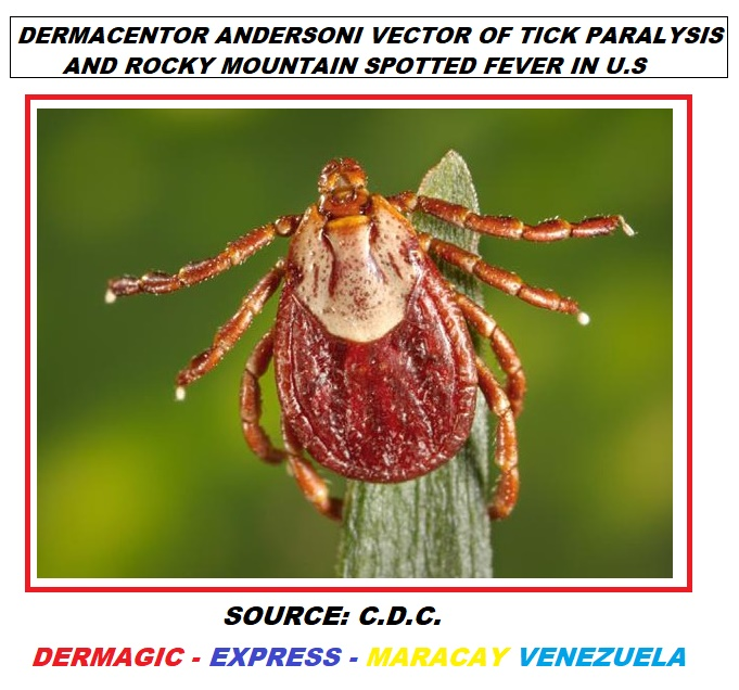 Tick Dermacentr Andersoni, vector of Tick Paralysis